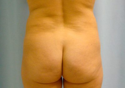 Pt1 • Liposuction • Before