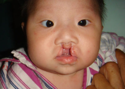 Before Cleft Lip Repaired
