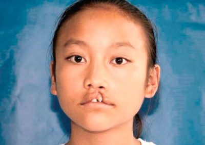 6a-Bijie_016-Cleft-Lip-before-BJ14-10