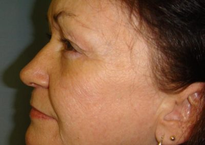 Before-Laser-Treatment