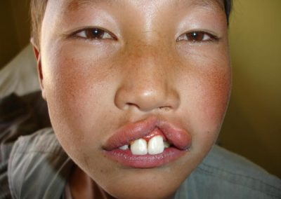 Cleft lip to be repaired