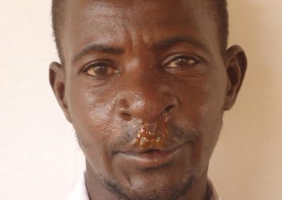 NIGER019-after-cleft-lip-repair