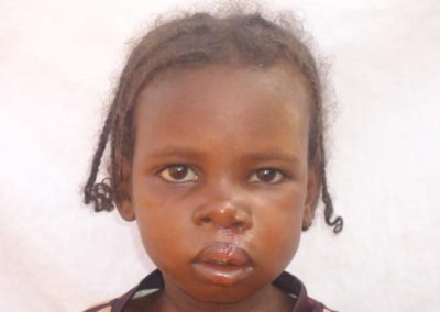 NIGER2-after-cleft-lip-repair
