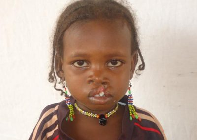 NIGER2-before-cleft-surgery