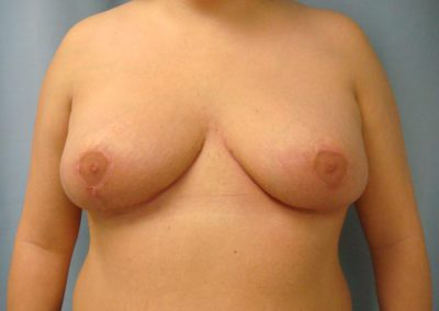 Pt1-Breast-Reduction-After