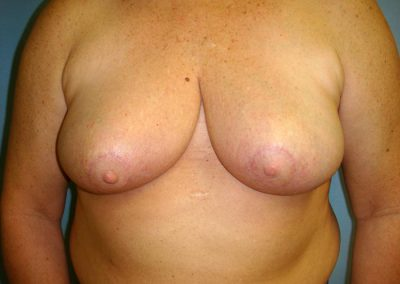 Pt3-Breast-Reduction-After