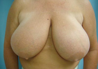 Pt3-Breast-Reduction-Before