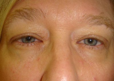 Pt4-Eyelid-Surgery-Before