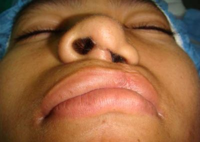 Before cleft lip/nose Revsion