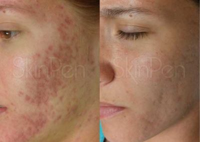 Skin Pen Before & After