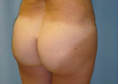 After Buttock Augmentation