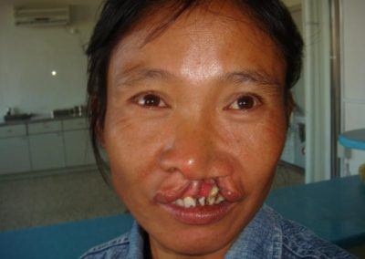 Cleft-lip-to-be-repaired
