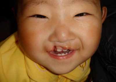 Happy-cleft-child