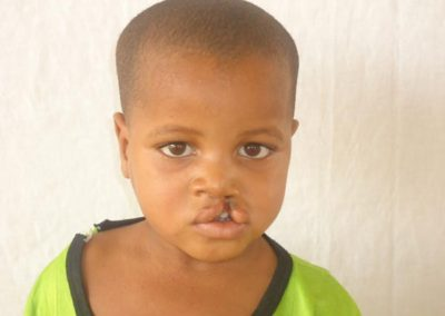 NIGER010-before-cleft-surgery