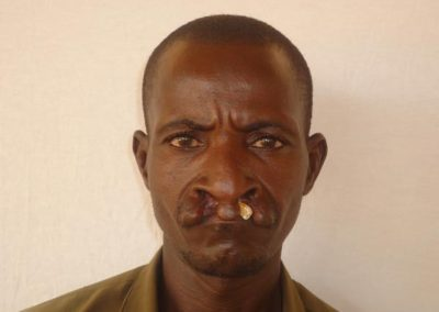 NIGER019-before-cleft-lip-surgery