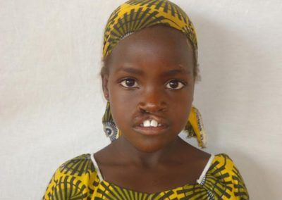NIGER021-before-cleft-lip-repair