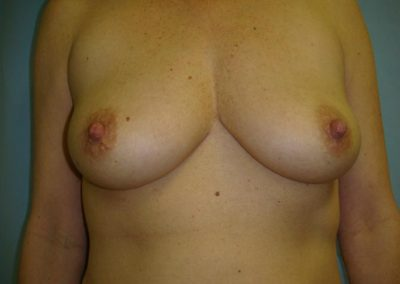 Pt1 • Breast Implants • Before