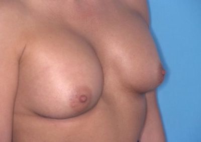Pt2 • Breast Implants • After