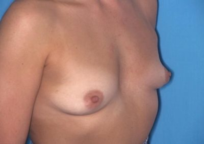 Pt2 • Breast Implants • Before