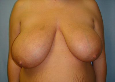 Pt1-Breast-Reduction-Before