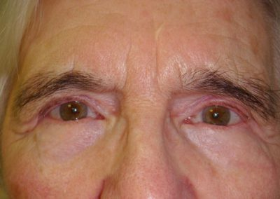 Pt1-Eyelid-Surgery-After
