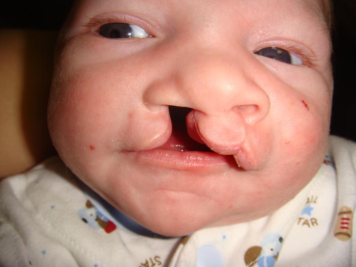 cleft lip Care guide for cleft lip and cleft palate includes: possible causes, signs and symptoms, standard treatment options and means of care and support.