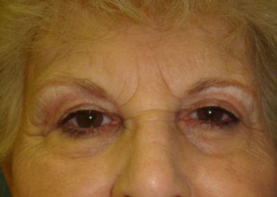 Pt2-Eyelid-Surgery-After