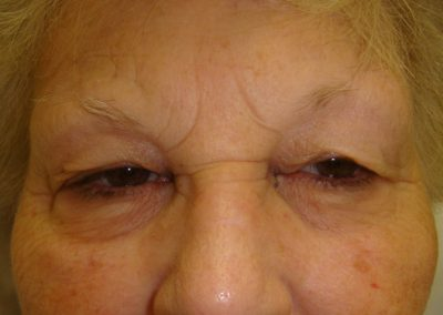 Pt2-Eyelid-Surgery-Before