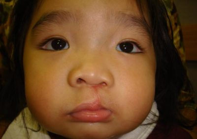 Pt3 • Cleft Lip Repair • After