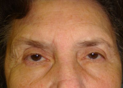 Pt3-Eyelid-Surgery-After