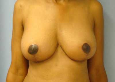 Pt4-Breast-Reduction-After