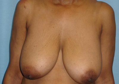 Pt4-Breast-Reduction-Before