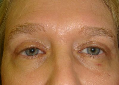 Pt4-Eyelid-Surgery-After